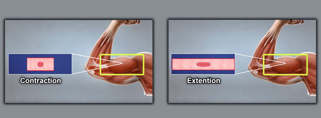 Contraction and Extension