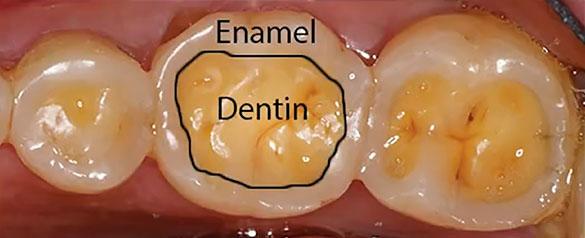 Enamel And Dentin layer