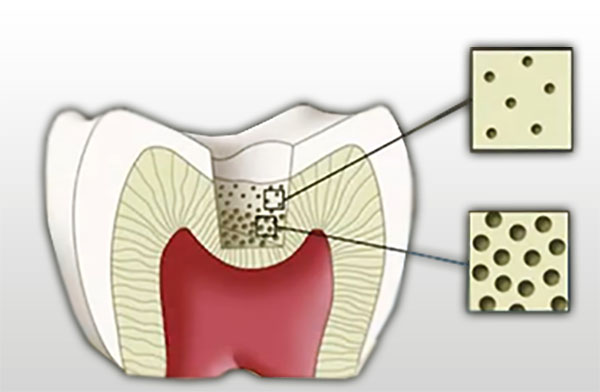 Dentin layer of the Tooth