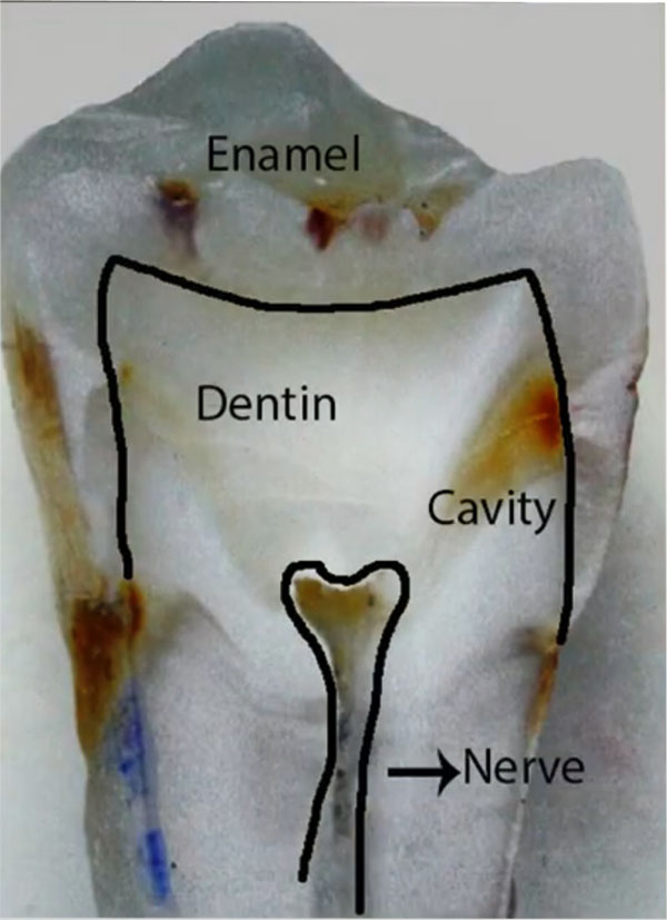 enters the tooth layer through the enamel and removes the bacteria that has already entered that layer