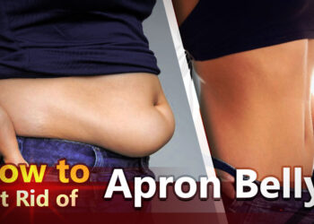How to get rid of apron belly